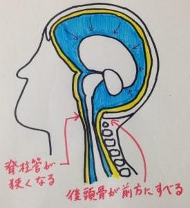 脳脊髄液2