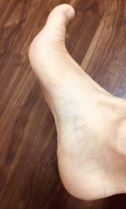整体ストレッチ 足の指1