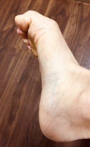 整体ストレッチ 足の指2