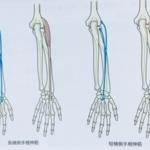 整体ストレッチ 肘外側痛2